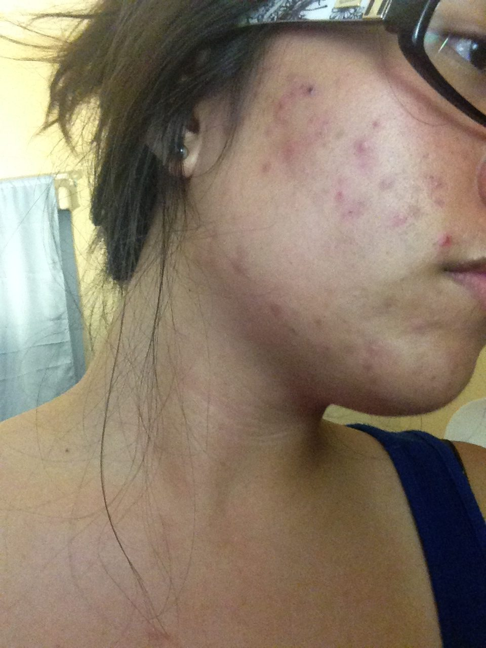 July 10th, 2014: Had my fellow esthetician treat my skin (with the spa products I didn't know were causing my allergic reaction). Seemed better temporarily.