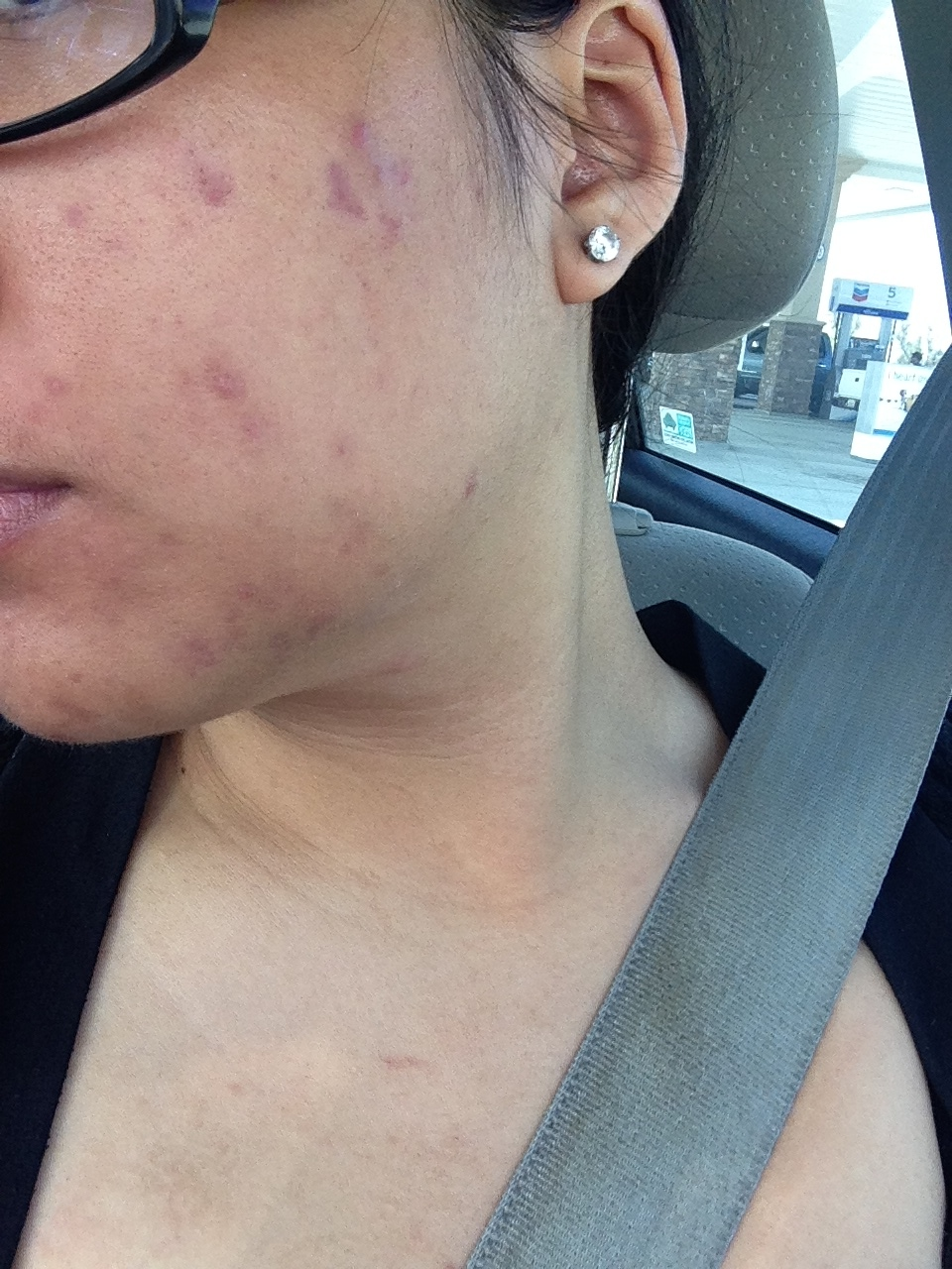 August 15th, 2014: The result of stopping all usage of products causing my allergic reaction and reverting back to my old regimen. Right before I started dermarolling (microneedling).