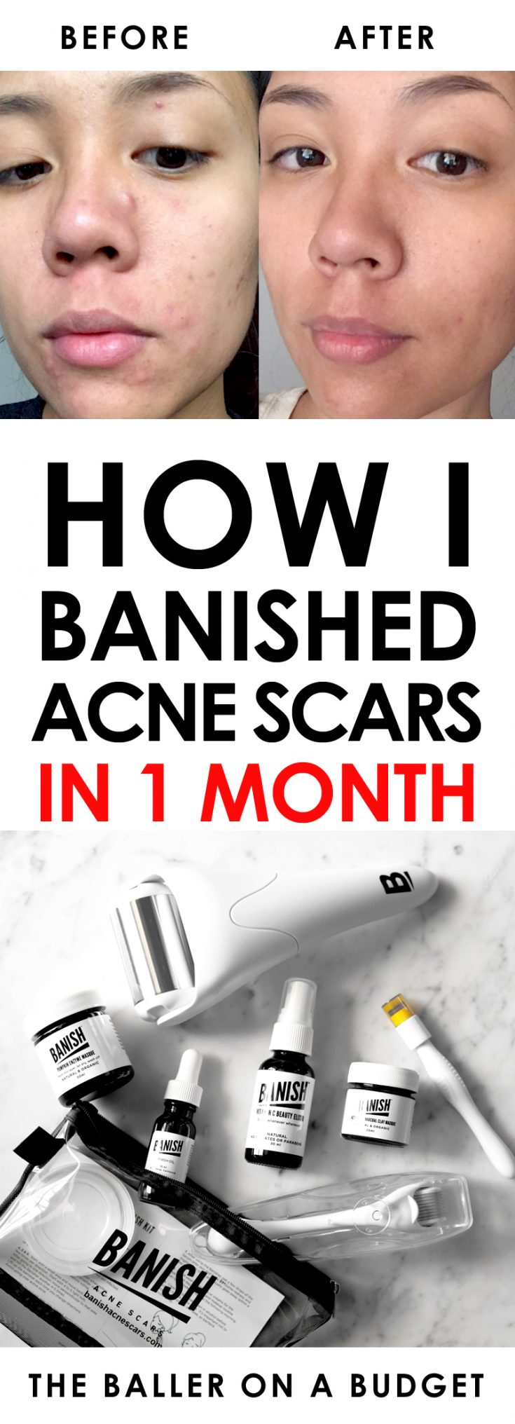 Even as an esthetician, I struggled with hormonal acne. Click here to read more about my journey to curing acne and how I banished acne scars in 1 month. - www.theballeronabudget.com