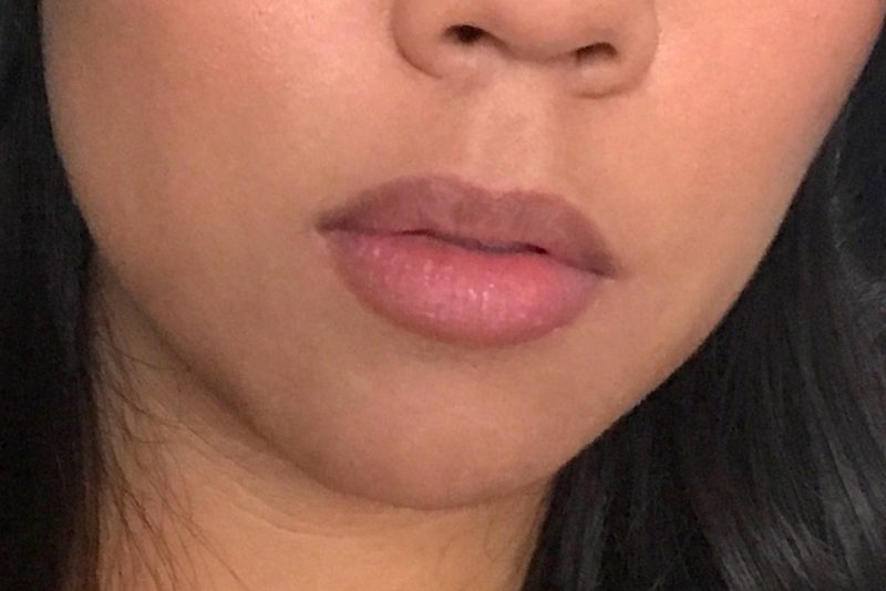 My lips immediately after using the PMD Kiss. You can see a huge difference in size, shape and color.