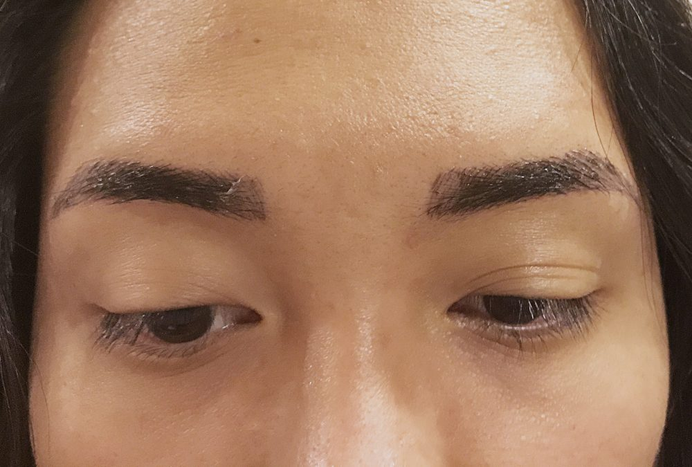 Week 1 post-microblading procedure. You can see that my brows are starting to peel.