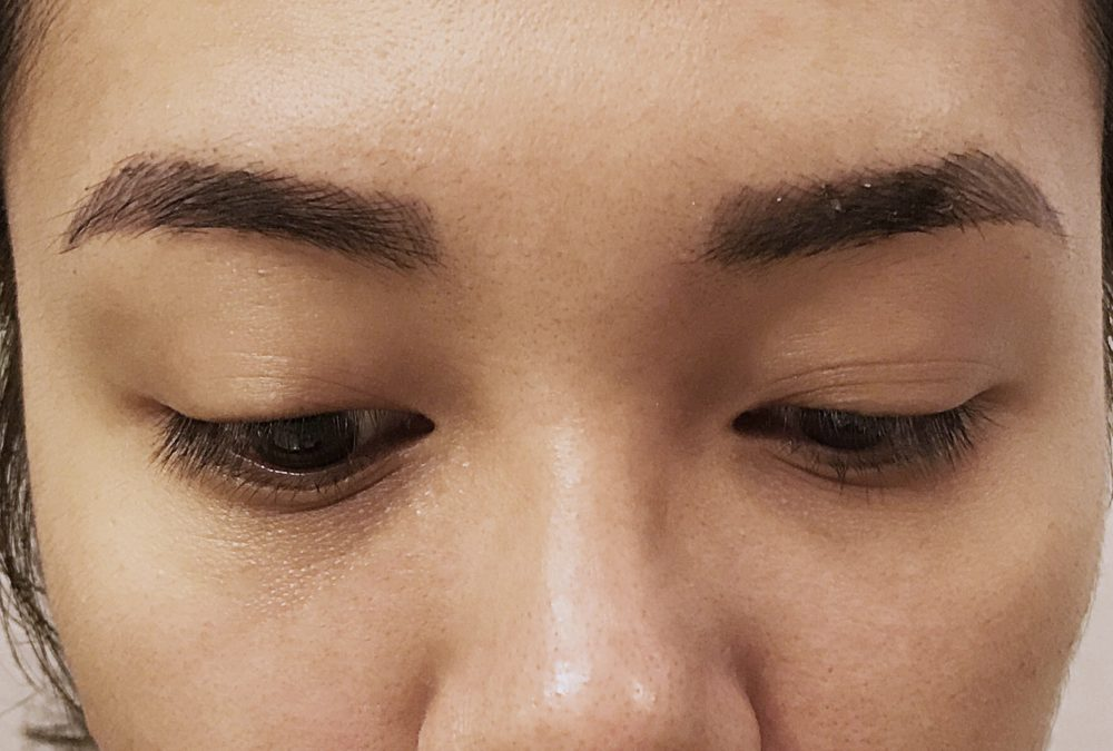 Week 2 post-microblading procedure. Most of the dead skin has peeled, but the color is still very dark.