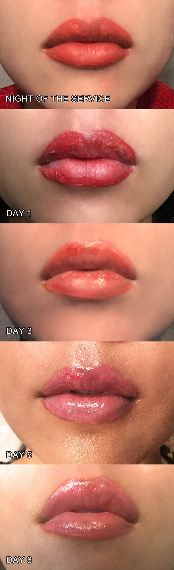 8 days after the permanent makeup application: You can see that the bright red-orange color starts to peel, revealing a pink color underneath. The pink will settle in and fade after 1-2 months. - www.theballeronabudget.com