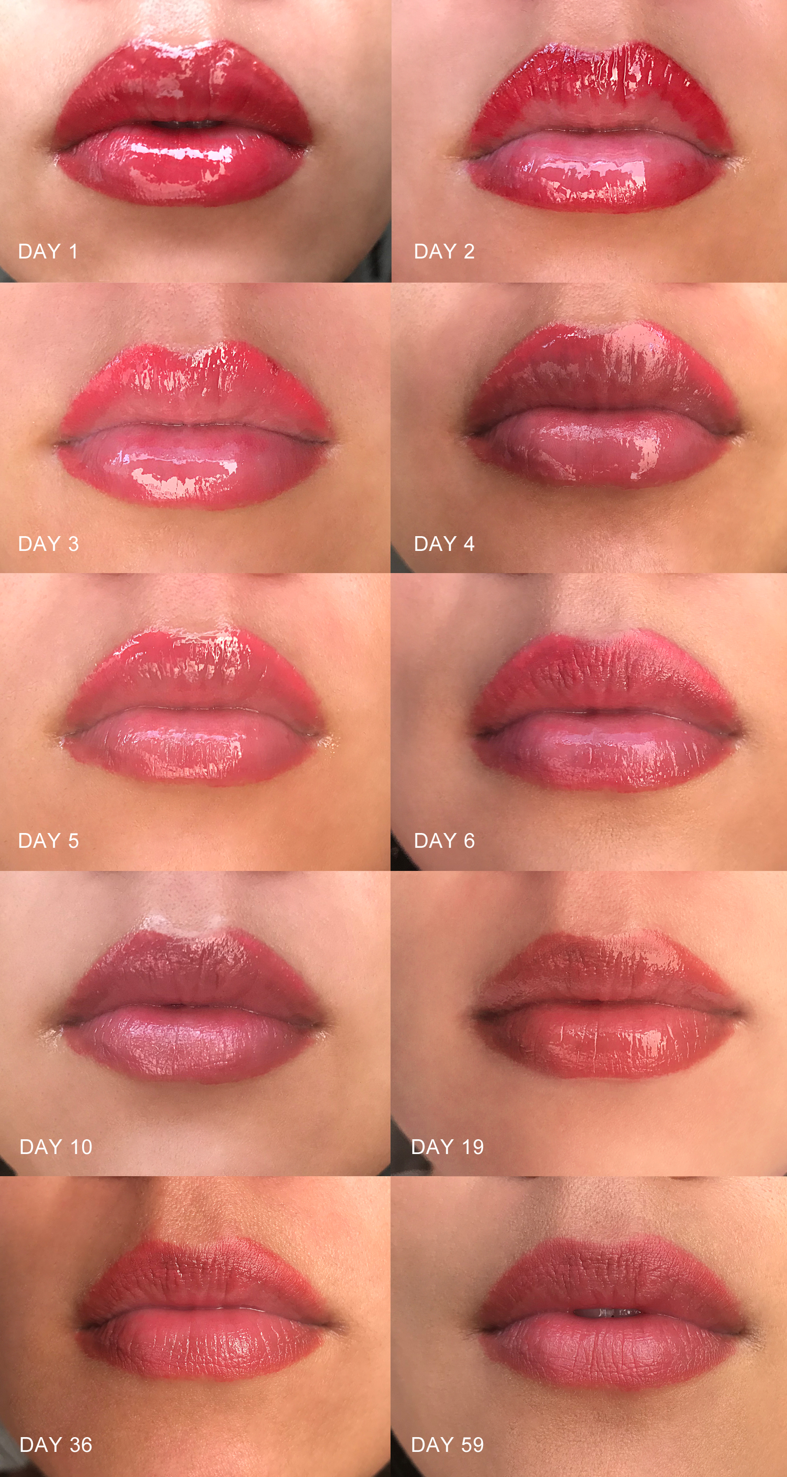 Healing after my touch-up session: This time we used more of a pink color to offset the red-orange undertone of my natural lip color and create more of a pink finish. The healing process was much faster this time around. - www.theballeronabudget.com